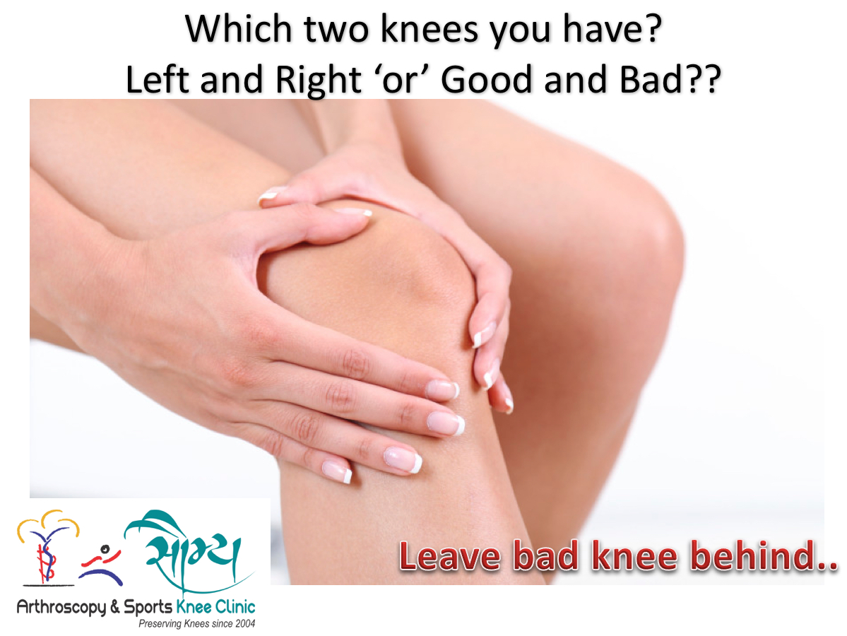 Good Knee or Bad Knee