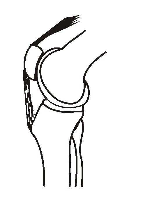 Knee Side View