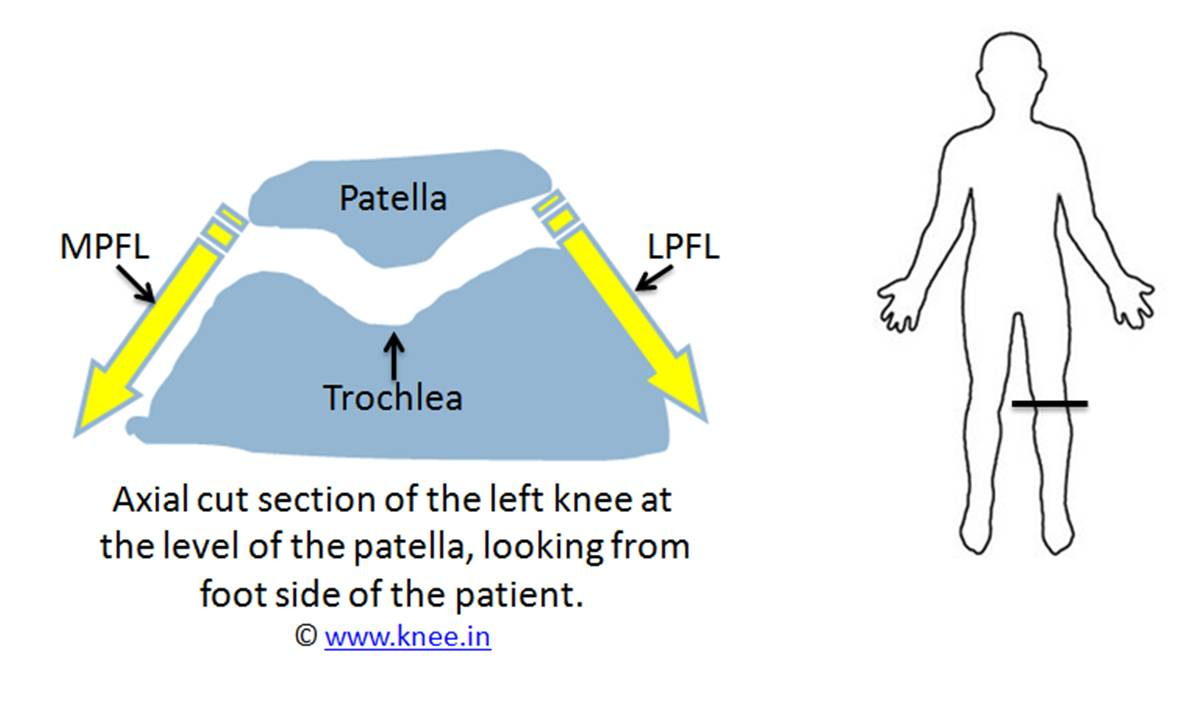 Normal relation between patella, trochlea and its ligaments by Deepak Goyal
