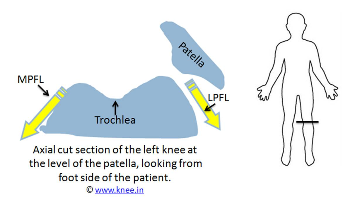 Patella dislocates from the trochlea slot by Dr Deepak Goyal