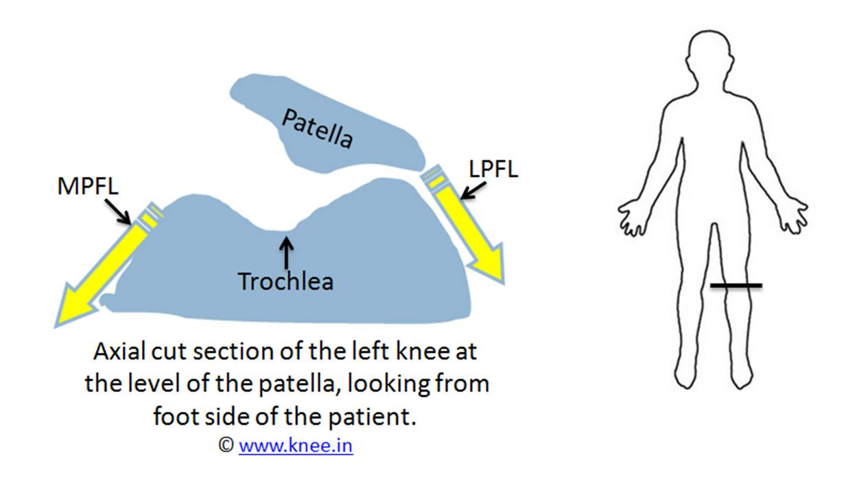 A torn MPFL causes patella to slip out of trochlea slot by Dr Deepak Goyal
